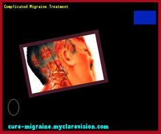 Complicated Migraine Treatment 190610 - Cure Migraine