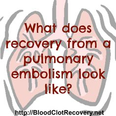 What recovery from a pulmonary embolism looks like - Blood Clot Recovery Network