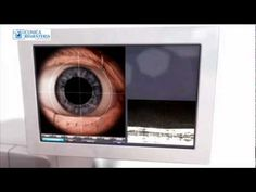 Cirugía guiada por imagen real - Láser LenSX para la Cirugía Catarata - http://www.cirugiaocular.com