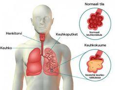Keuhkokuumeen oireet ja hoitokeinot