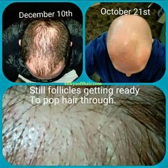 Are you or someone you know struggling with hair loss? Monat is clinically proven to regrow healthy hair without all the harsh chemicals. Botanically based. Try it! Guaranteed!
