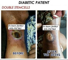 Diabetes patient testimony for Double Stemcell. #Stemcell #Diabetes #Phytoscience
