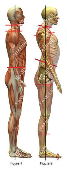 Posture (Tight Psoas Symptoms)