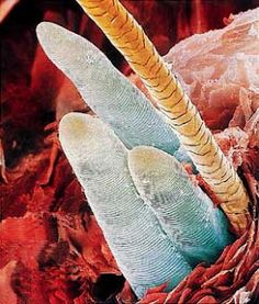 Did you know that our epidermis houses billions of bacteria/microflora/other commensals? This includes your oesophagus, digestive tract, your exterior skin & even in the hair follicles of you eyebrows!This picture depicts a harmless commensal known as Demodex which lives in your eyebrow follicles...so next time you feel it itching, think of them...LOL*