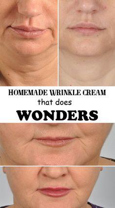 Homemade wrinkle cream that does wonders - Best 101 Beauty Tips