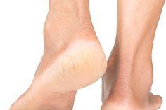6 astuces de grand-mère pour avoir des talons tout douxnoté 3.9 - 22 votes Quand on porte des chaussures qui découvrent le pied, il y a quelques détails pas glamour qui ne passent pas. Les ongles pleins de crasse ou avec le vernis à moitié arraché et les mycoses et autres verrues sont au top …