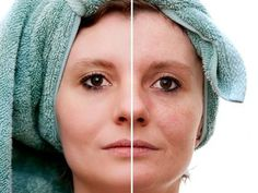 Domowe sposoby na przebarwienia skóry. | naturalnaapteka