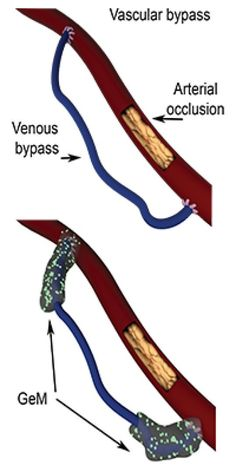 Coronary or peripheral bypasses are the most frequently performed vascular operations. Although one million patients per year and around the world, undergo this intervention, its failure rate reaches 50%, because of poor vessel healing, leading to vessel graft occlusion. To improve the outcome of bypasses, researchers have developed a gel containing microparticles –'GeM', enabling the controlled release of a drug inhibiting cellular over-proliferation. Administered locally, directly on the…