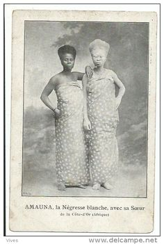 Circus Freak Africa Black Albino Lady with Sister original old postcard Albino African, Melanism, Human Oddities, Coloured Girls, History Of Photography, Picture Postcards, African Diaspora, Vintage Circus, African History