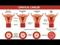 10 Warning Signs of Cervical Cancer You Should Not Ignore - WATCH VIDEO HERE -> http://bestcancer.solutions/10-warning-signs-of-cervical-cancer-you-should-not-ignore-4    *** signs of cervical cancer ***   Cervical cancer is one of the most common cancers in women worldwide. It occurs in the cells of the cervix, the lower part of the uterus that connects to the vagina.The American Cancer Society estimates that about 12,900 new cases of cervical cancer will be...