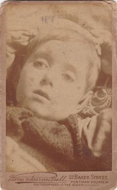 Antique CDV, Post-Mortem Photo Of Young Boy - Brown, Barnes & Bell - Mourning - Funeral - Via Fox & Fable Vintage