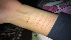 Um these are what mine look like too. They aren't very deep but it still stings. Save Water Poster Drawing, Emo Cut, Cut Pic, Depression Kills, Haircuts Straight Hair, Sad Texts, Best Photo Background, Life Hurts, Stylish Girls Photos