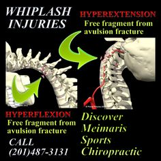 Whiplash injuries can be subclinical (without symptoms) for some time after the accident. Get your spine checked! Avulsion Fracture, Whiplash Injury, Back Injury, Serious Injury, Chiropractic, Pictures, Car, Laughing, Sports