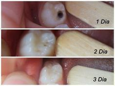 How to heal cavities! A series of photos showing the healing of cavities at week week and week Teeth Health, Healthy Teeth, Oral Health, Dental Health, Health And Nutrition, Healthy Tips, Proper Nutrition, Nutrition Education, Natural Cures