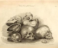 The principles of surgery, 1801-1808,University of Toronto Libraries.
