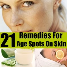 DIY Find Home Remedies - http://www.homeremedyfind.com/top-21-home-remedies-for-ugly-age-spots-on-skin/