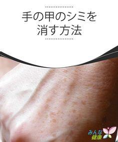手の甲のシミを消す方法 手の甲にできるシミは、明らかに加齢のサインです。したがって、シミができてしまったら、隠したりなんとか消したいと思う方が多いでしょう。今日は、手の甲のシミを消す方法について見ていきましょう。