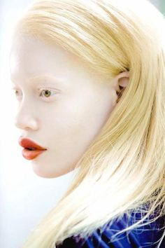 Stunning albino African American girl, wonders about the same as any other girl.