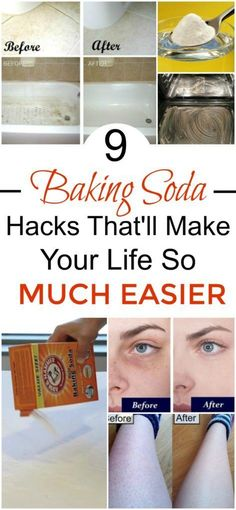 9 Baking Soda Hacks That You Need To Know. These baking soda cleaning tips … - Hacks Baking Soda Cleaning, Baking Soda Shampoo, Baking Soda Uses, Beauty Hacks Baking Soda, Baking Soda For Laundry, Baking Soda Teeth, Baking Hacks, Oven Cleaning, Dry Shampoo