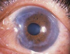 Polyarteritis, sarcoidosis, and VKH, should also be considered in the differential diagnosis of keratitis with vestibuloauditory symptoms.  Cogan syndrome is a rare, chronic inflammatory causing interstitial keratitis and vestibuloauditory disorder commonly affecting young to middle aged adults.