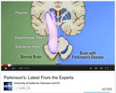 Morbo di Parkinson / Parkinson's: Latest From the Experts, Parkinson's Disease : What is