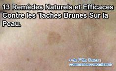 Vous avez des taches brunes sur le visage ou les mains ? Heureusement, il existe des remèdes naturels pour les enlever ou au moins estomper. Découvrez maintenant les 13 remèdes simples et efficaces pour faire disparaître ces taches brunes.  Découvrez l'astuce ici : http://www.comment-economiser.fr/13-remedes-simples-efficaces-disparaitre-taches-brunes.html?utm_content=buffer1aa8d&utm_medium=social&utm_source=pinterest.com&utm_campaign=buffer