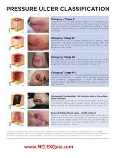 4 Stages of Pressure Ulcers Pressure Ulcer Staging, Nursing Information, Surgical Nursing, Icu Nursing, Nursing Mnemonics, Fundamentals Of Nursing, Nursing School Notes, Nursing Tips, Nclex