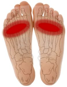 Metatarsalgia is a leading cause of forefoot pain What is it? Who gets Metatarsalgia? How to diagnose Metatarsalgia What is the treatment of Metatarsalgia ?