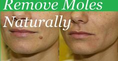 Do you have a stubborn mole that you just want to be gone? There are many natural ways that you can get rid of ...