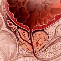 Coada-Calului Vindecă Osteoporoza și Încetinește Îmbătrânirea | La Taifas Good To Know, Cookie Cutters, Diet, Banting, Diets, Per Diem, Food