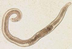 Enterobius vermicularis adulto