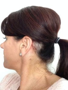 Baha Accessories Baha Baha Hearing Aid Hearing