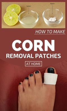 Watch This Video Extraordinary Ways to Get Rid of Toenail Fungus Fast Naturally Ideas. Fatching Ways to Get Rid of Toenail Fungus Fast Naturally Ideas. Home Remedies For Warts, Toenail Fungus Remedies, Foot Remedies, Sleep Remedies, Cellulite Remedies, Headache Remedies, Warts On Hands, Warts On Face, Corn On Toe