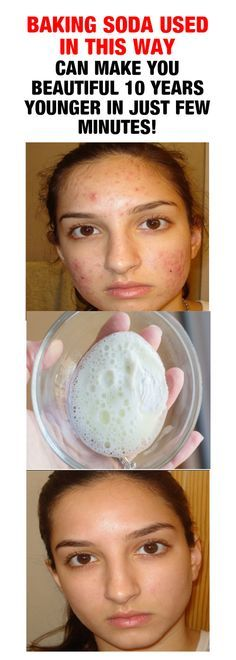 Baking soda is a powerful versatile active ingredient that can be utilized for a. Baking soda is a Baking Soda For Hair, Baking Soda Uses, Beauty Care, Beauty Skin, Face Beauty, Facial Care, Beauty Recipe, Health And Beauty Tips, Skin Tips
