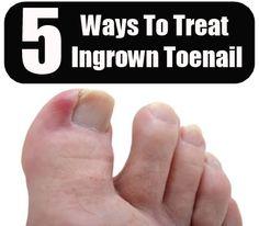 how to get rid of my ingrown toenails