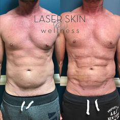Check out this VaserPlazty procedure of the flanks and abdomen. The after is three weeks post treatment. He still has a few weeks of healing to go. VASERPlazty is the combination of VASER assisted liposuction and J Plasma sub-dermal skin tightening. This minimally invasive procedure uses cold plasma energy under the skin to lift, tighten and rejuvenate the lower face, neck, arms and trunk. Body Contouring, Liposuction, Skin Tightening, My Man, Arms, Healing, Cold, Face, Check