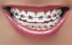 Silver Colored Braces