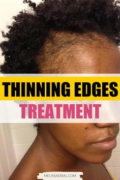 Have thinning edges. Read our blog on how you can fix it in a matter of weeks Natural Hair Growth Remedies, Natural Hair Treatments, Natural Hair Care Tips, Natural Hair Styles, Hair A, Bad Hair, Your Hair, Thinning Edges, Scalp Conditions