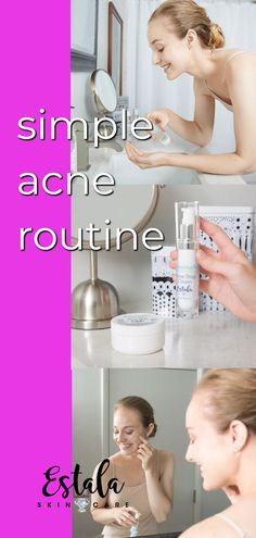Simple acne routine and skincare regimen for hormonal acne. Learn how to clear acne at home with this nighttime skin care routine for acne from Estala Skin Care. Oily Skin Treatment, Acne Treatments, Winter Beauty Tips, Skin Care Routine For 20s, Skincare Routine, Skin Lightening Cream, Clear Skin Tips, Moisturizer For Dry Skin, Homemade Moisturizer