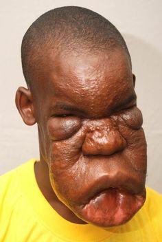 Antley-Bixler Syndrome | Deformed Angels | Pinterest