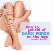 Anyone else have to deal with dark pores try this it TOTALLY WORKS!!!