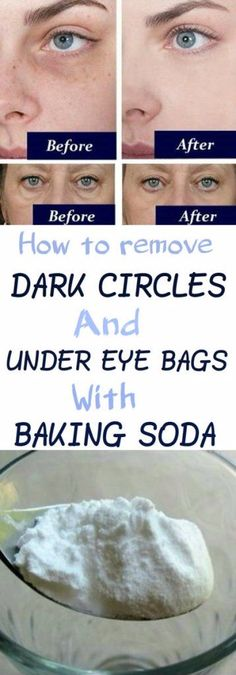 How to Remove Dark Circles And Under Eye Bags With Baking Soda
