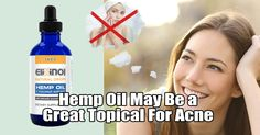 Hemp Oil May Be a Great Topical For Acne - https://elixinol.com/blog/hemp-oil-may-great-topical-acne?utm_source=rss&utm_medium=Friendly+Connect&utm_campaign=RSS #cbd #hemp