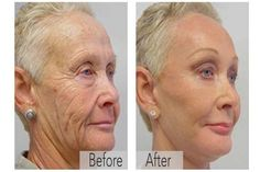 Skin Tightening Better than botox A mother reveals the anti-aging trick of the stars! Viewable results in 14 days Anti Aging Tips, Best Anti Aging, Anti Aging Skin Care, Natural Skin Care, Organic Skin Care, Creme Anti Age, Anti Aging Cream, Prevent Wrinkles, Skin Care Tips