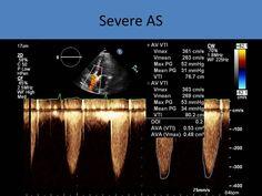 Cardiac Sonography, Ultrasound Sonography, Arteries Anatomy, Aortic Stenosis, Cardiac Nursing, Radiology, Biotechnology, Physiology, Pediatrics