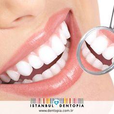 Dişlerimin Genel Renginden Memnunum Fakat Tek Bir Dişimde Renklenme Var Nasıl Tedavi Ederim