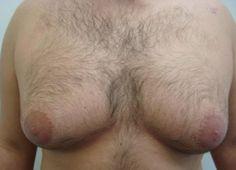 hypothyroidism symptoms in men  http://www.holistic-healing-information.com/hypothyroidism-symptoms-in-men.html