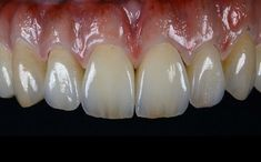 Icy Cosmetic Dentistry Tips Dental Design, Dental Art, Dental Wallpaper, Dental Aesthetics, Dental Photography, Dental Anatomy, Dental Technician, Teeth Shape, Dental Veneers