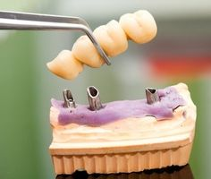 Implant Dentistry     Are you missing a tooth or maybe teeth? If you are, you're a perfect candidate for implant dentistry. An implant is a titanium post that is positioned in the bone under the gum. After it has healed sufficiently a crown will be placed on the post. You won't be able to tell it from a real tooth and no one else will either! You'll have your smile back and prevent damage to your other teeth.