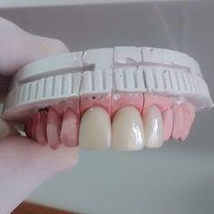 Boa tarde a todos. Prótese Fixa 3 elementos cor A1  Agende por email uma visita em seu consultório. Saquarema Bacaxá Araruama e região.  trabalhamos com diversos tipos de próteses. flexíveis acrílicas caracterizada no sistema STG PPr Com grampo estético  laboratórioleandroosorio@gmail.com #boatardee #saquarema #araruama #denist #dental #dentista #dentsply #dentures #dentalart #dentallab #dentistry #denstistry #dentalgram #dentallife #Dienteisosit #dentallabtechs #DentalWitakril…